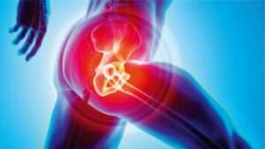 Hip replacement surgery cost in India